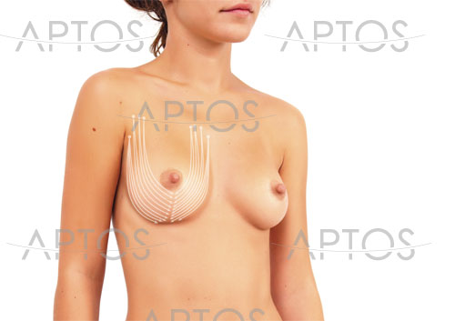 Excellence_Body_Breast-new
